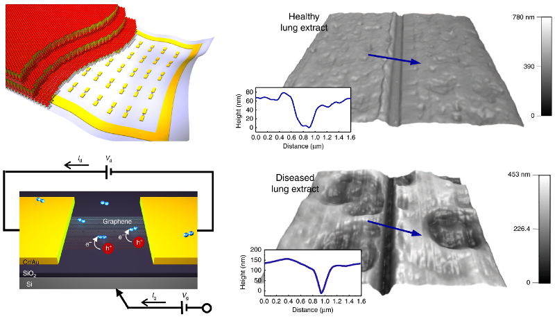 Schematics of graphene FET-based sensor and AFM topography images of healthy and diseased lung extracts