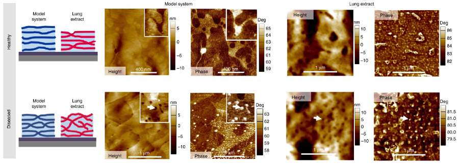 Conceptual diagrams of membrane morphology for healthy and diseased systems; topography and tapping mode phase images of a model system and a lung extract in healthy and diseased states