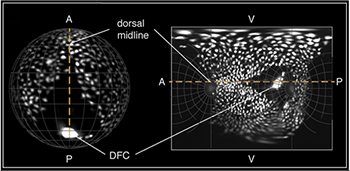 Spatial orientation of a Tg(Sox17:EGFP) embryo in 3D and on the final map projection