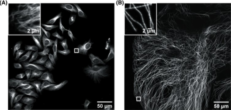 HeLa cells non expanded microtubules