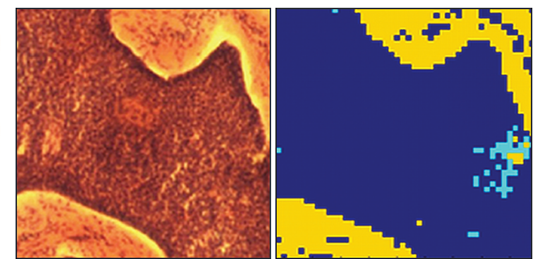 Comparison of the images acquired from a region of tissue showing, in a) the histopathology image acquired post Raman analysis, and b) the 2D pseudo-colour image derived from the Raman measurements carried out in-vitro