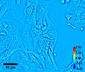 Quantitative phase imaging of Beating cardiomyocyte. Color bar shows phase in radian and scale bar is in micron
